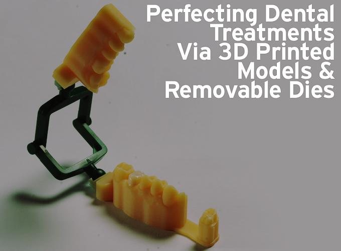 Perfecting Dental Treatments Via 3D Printed Models & Removable Dies