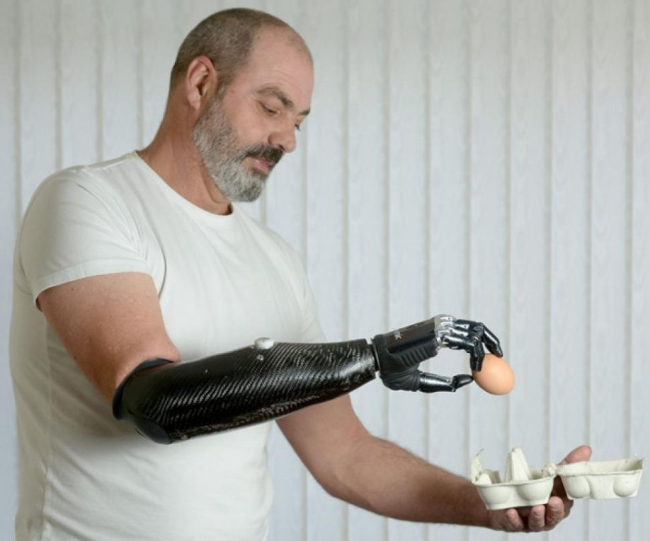 http://assets.nydailynews.com/polopoly_fs/1.1197998.1352301377!/img/httpImage/image.jpg_gen/derivatives/article_970/article-bionic3-1107.jpg